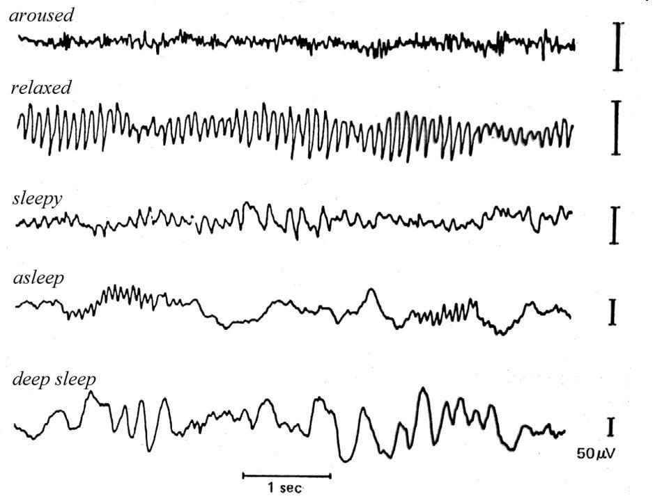Delta: 0.5-3,5 Hz, theta: 4-7.5 Hz; alfa: 8-12 Hz, beta: 13-30, gamma: 31-50Hz (1-2 hz-et kutatásonként eltérhet)