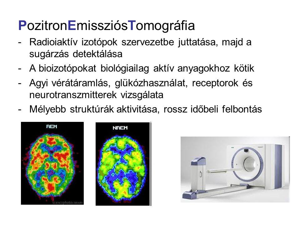 PozitronEmissziósTomográfia
