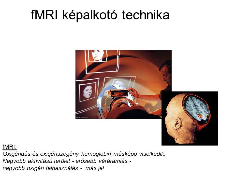 fMRI képalkotó technika