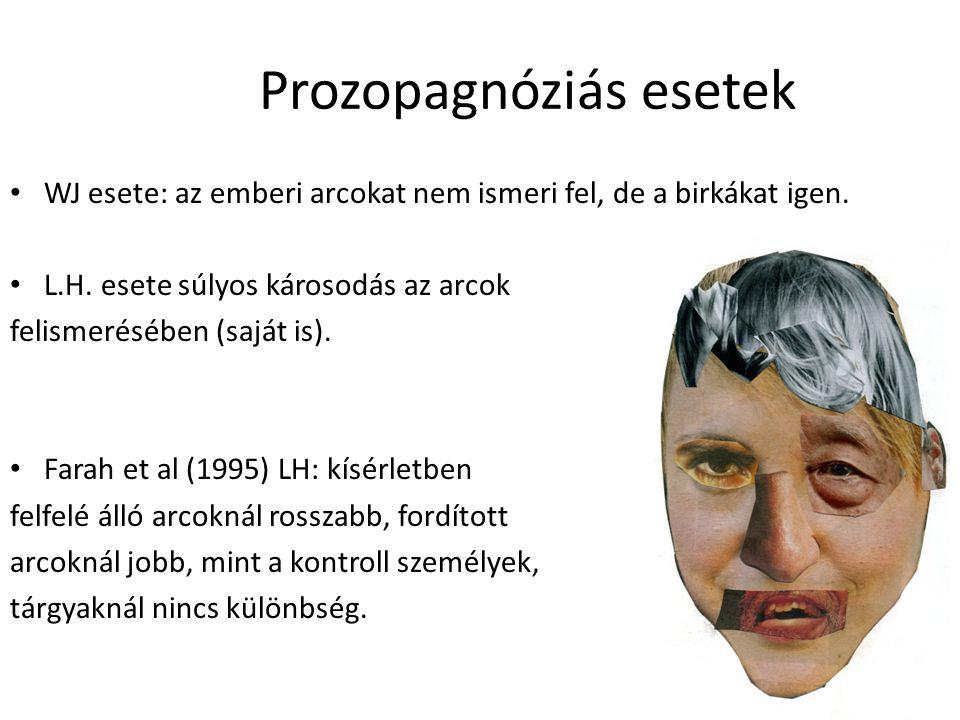 Prozopagnóziás esetek