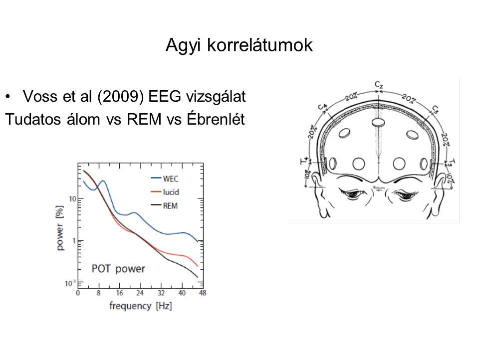 Agyi korrelátumok Voss et al (2009) EEG vizsgálat