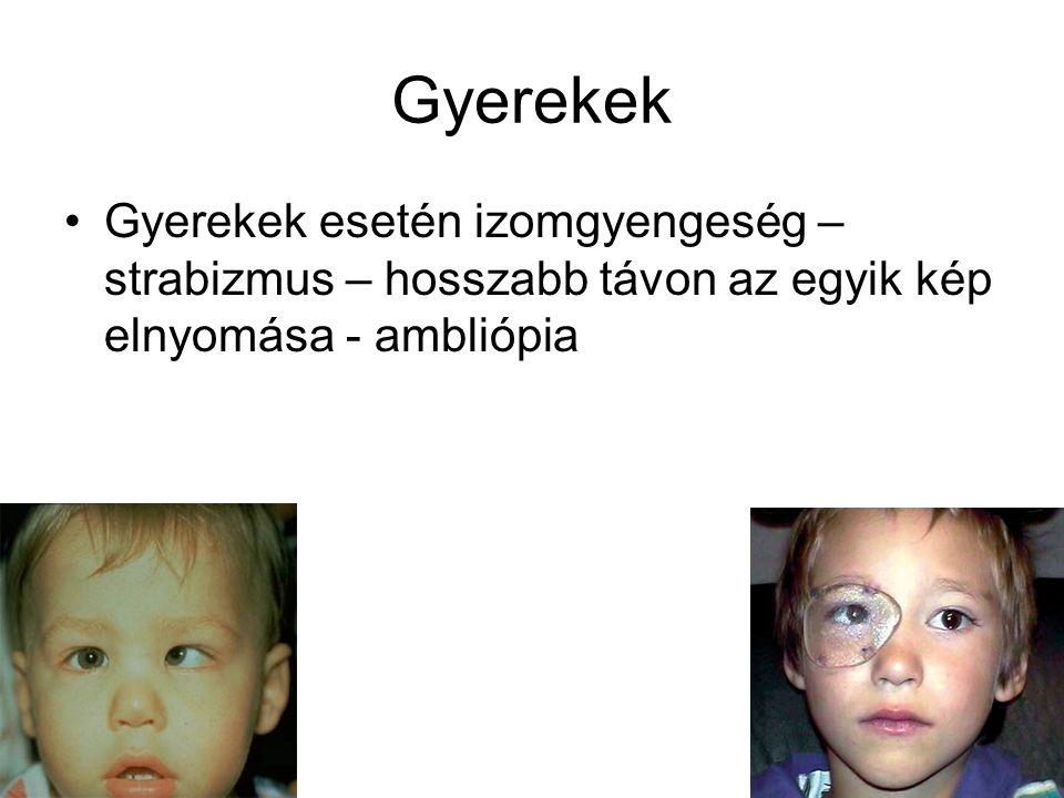 Gyerekek Gyerekek esetén izomgyengeség – strabizmus – hosszabb távon az egyik kép elnyomása - ambliópia.