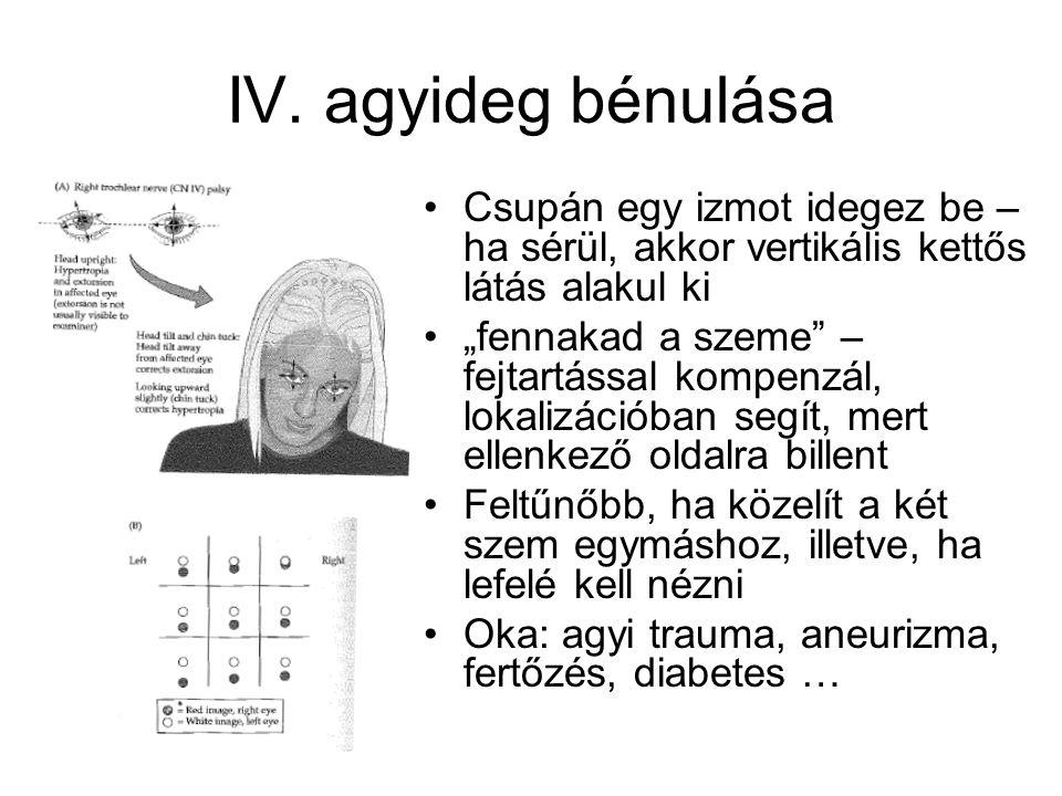 IV. agyideg bénulása Csupán egy izmot idegez be – ha sérül, akkor vertikális kettős látás alakul ki.