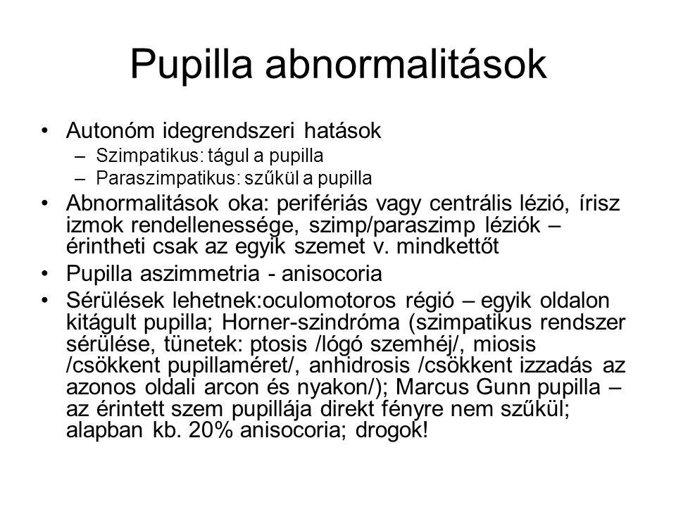 Pupilla abnormalitások