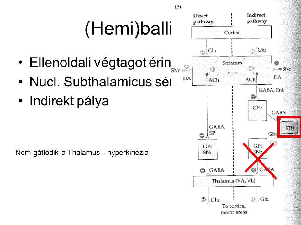 (Hemi)ballizmus Ellenoldali végtagot érint Nucl. Subthalamicus sérülés