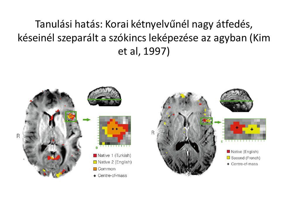 Tanulási hatás: Korai kétnyelvűnél nagy átfedés, késeinél szeparált a szókincs leképezése az agyban (Kim et al, 1997)