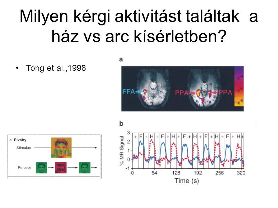 Milyen kérgi aktivitást találtak a ház vs arc kísérletben