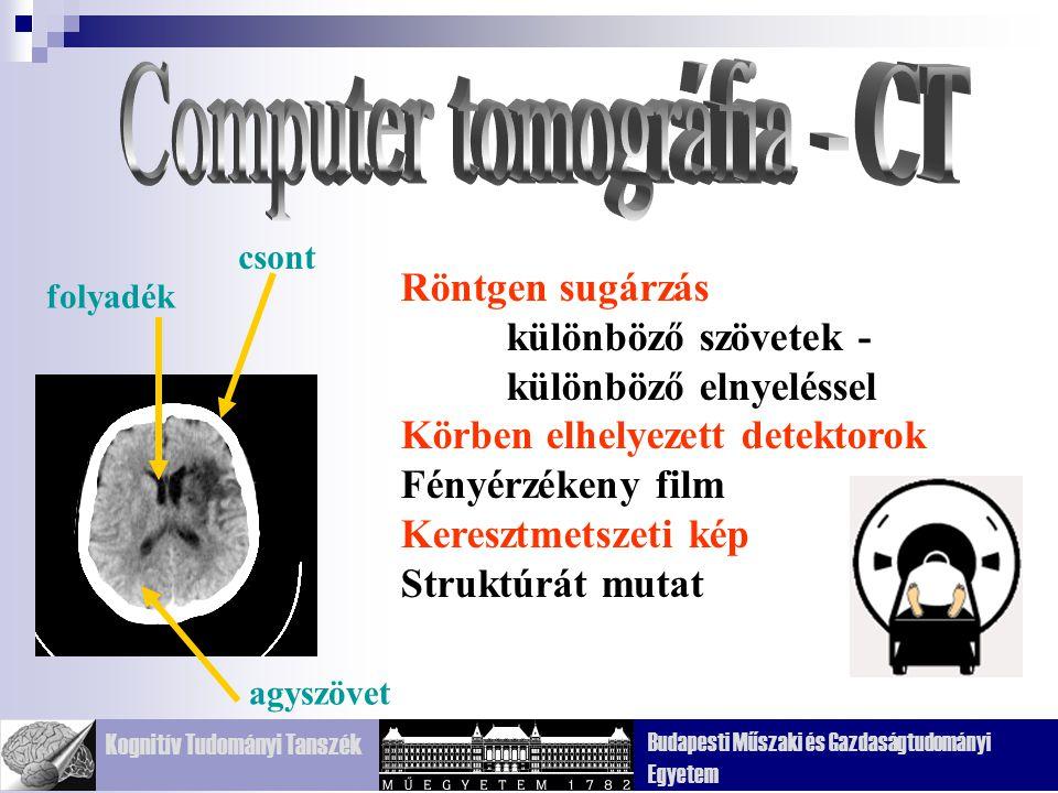 Computer tomográfia - CT
