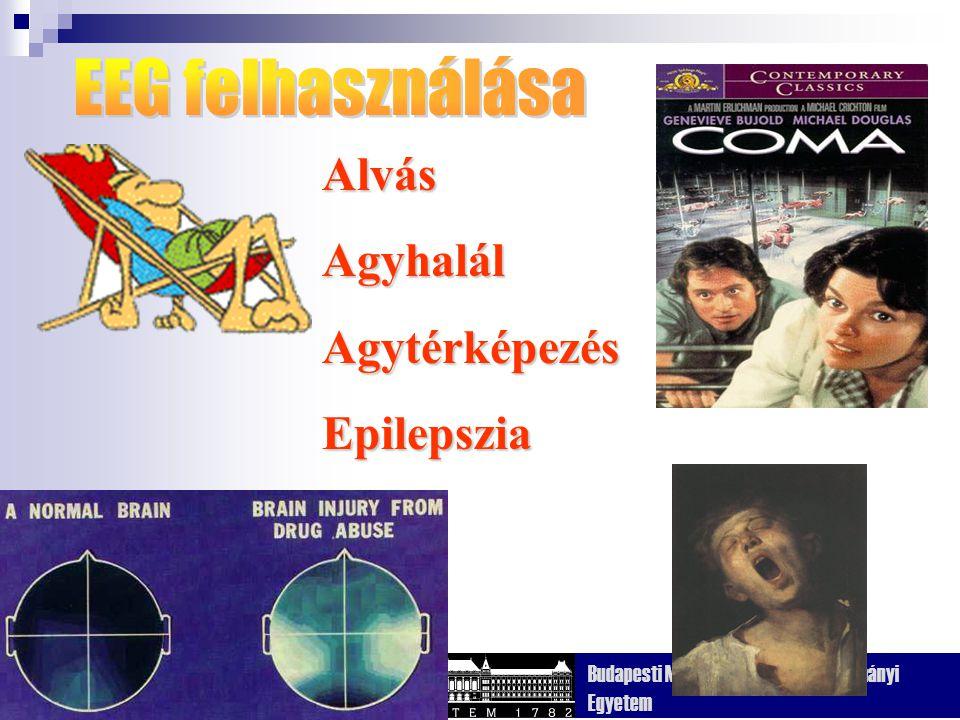 EEG felhasználása Alvás Agyhalál Agytérképezés Epilepszia