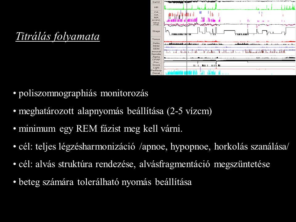 Titrálás folyamata poliszomnographiás monitorozás