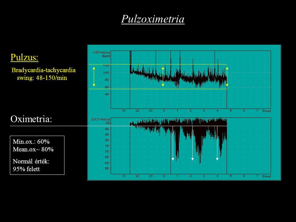 Bradycardia-tachycardia swing: 48-150/min