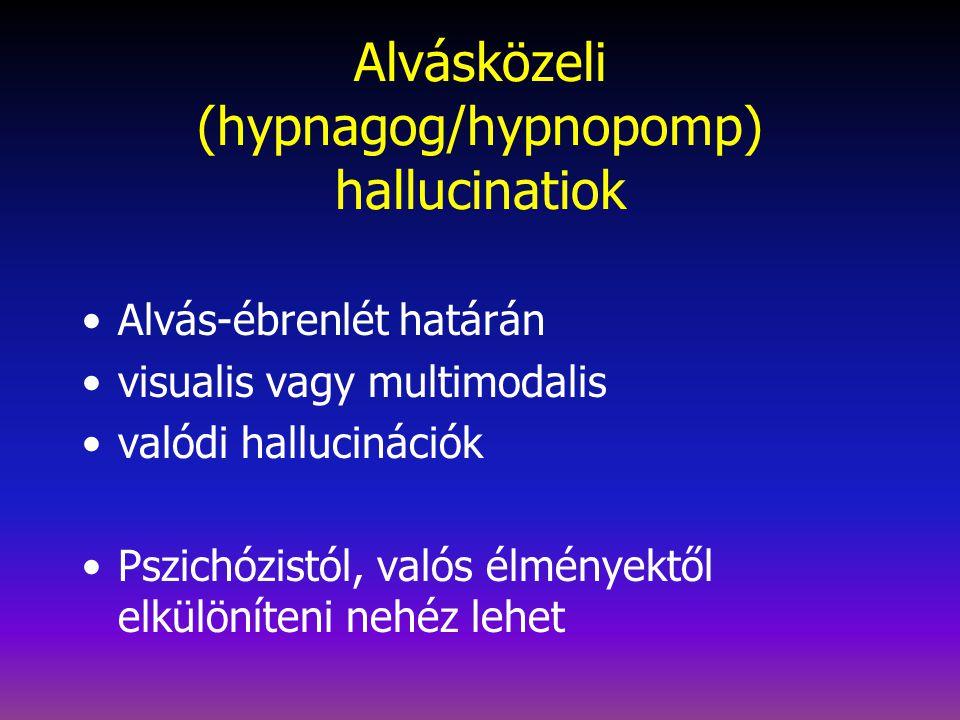 Alvásközeli (hypnagog/hypnopomp) hallucinatiok