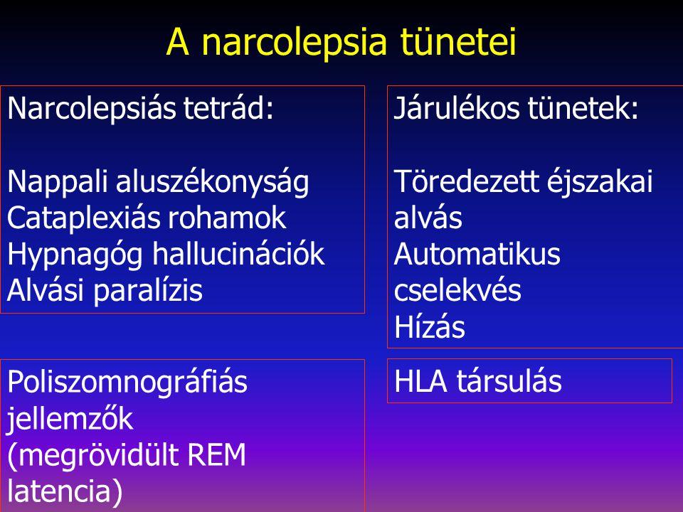 A narcolepsia tünetei Narcolepsiás tetrád: Nappali aluszékonyság