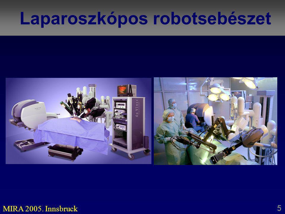 Laparoszkópos robotsebészet