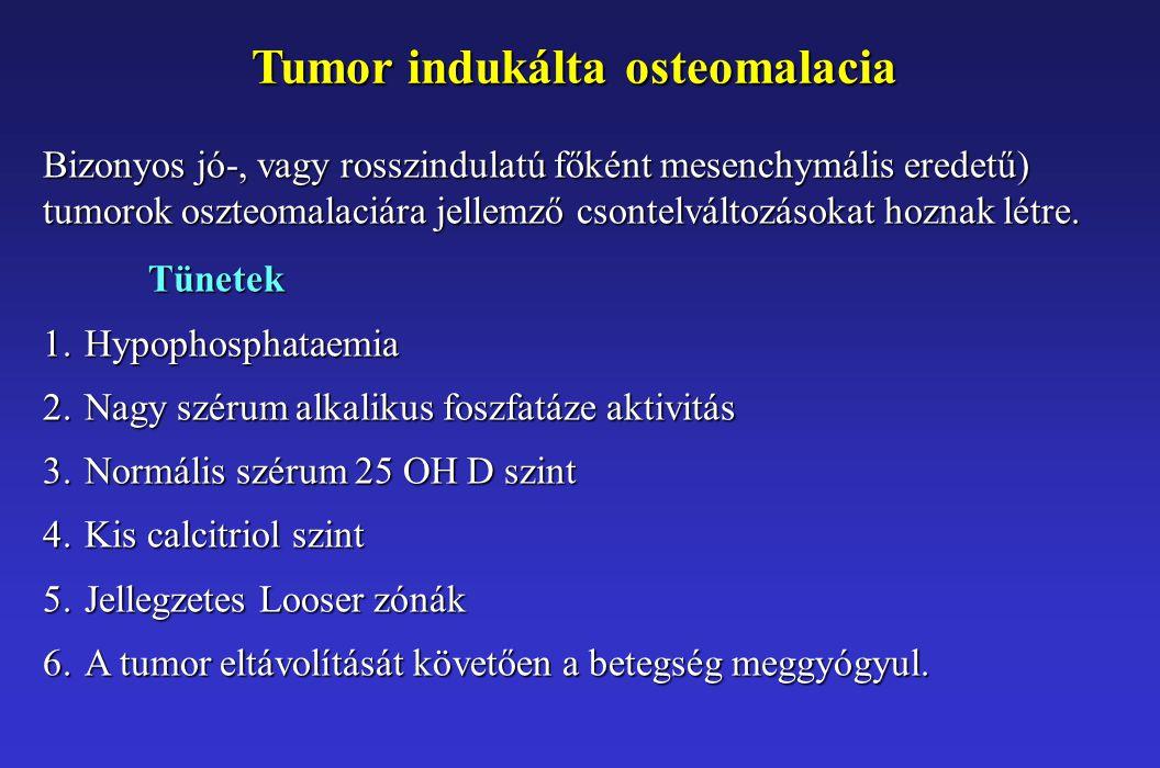 Tumor indukálta osteomalacia