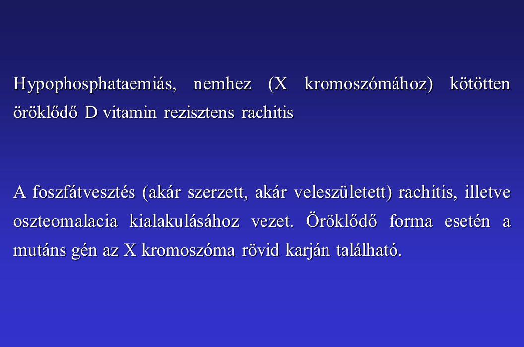 Hypophosphataemiás, nemhez (X kromoszómához) kötötten öröklődő D vitamin rezisztens rachitis