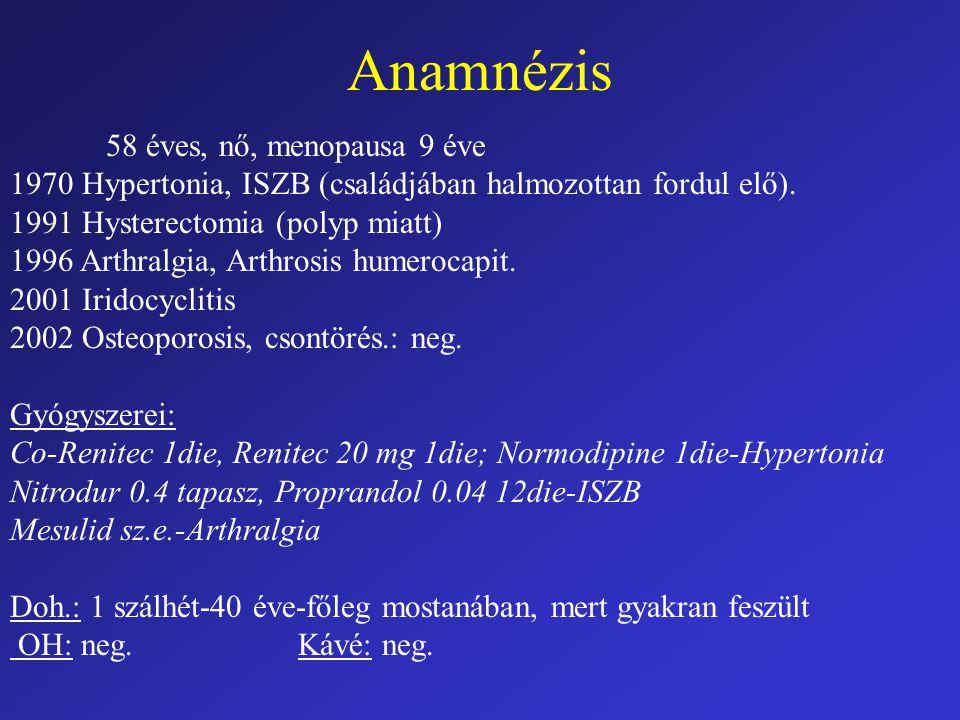 Anamnézis 58 éves, nő, menopausa 9 éve