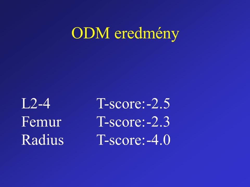 ODM eredmény L2-4 T-score: -2.5 Femur T-score: -2.3