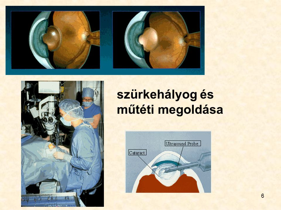 szürkehályog és műtéti megoldása