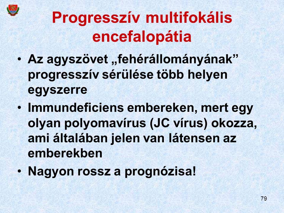 Progresszív multifokális encefalopátia