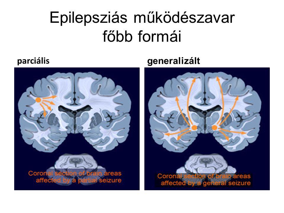 Epilepsziás működészavar főbb formái