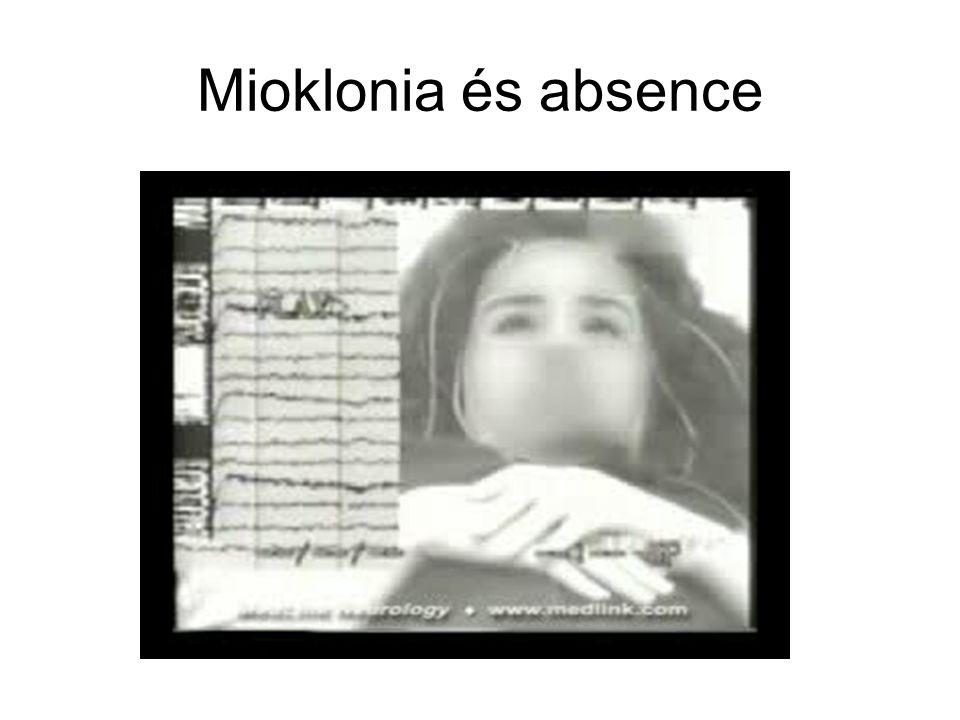 Mioklonia és absence