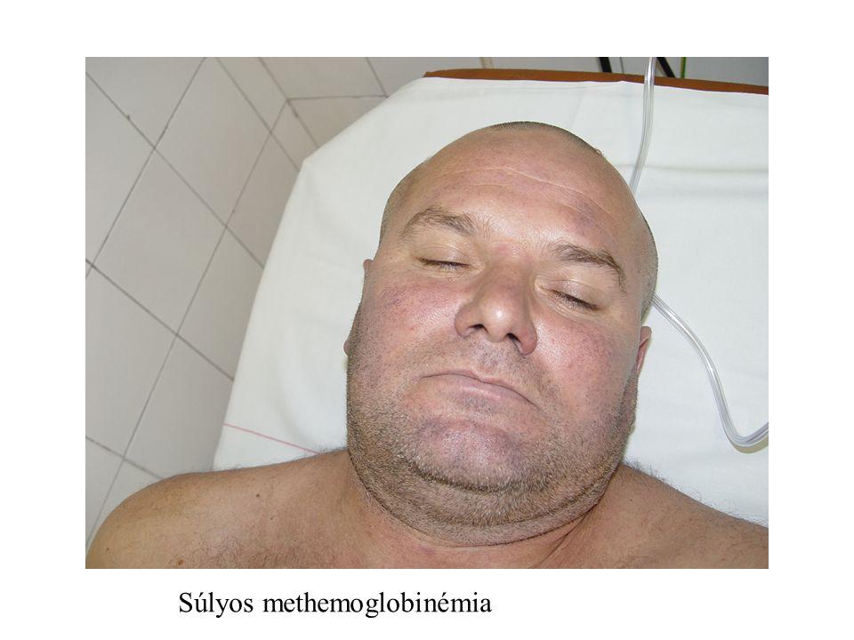 Súlyos methemoglobinémia