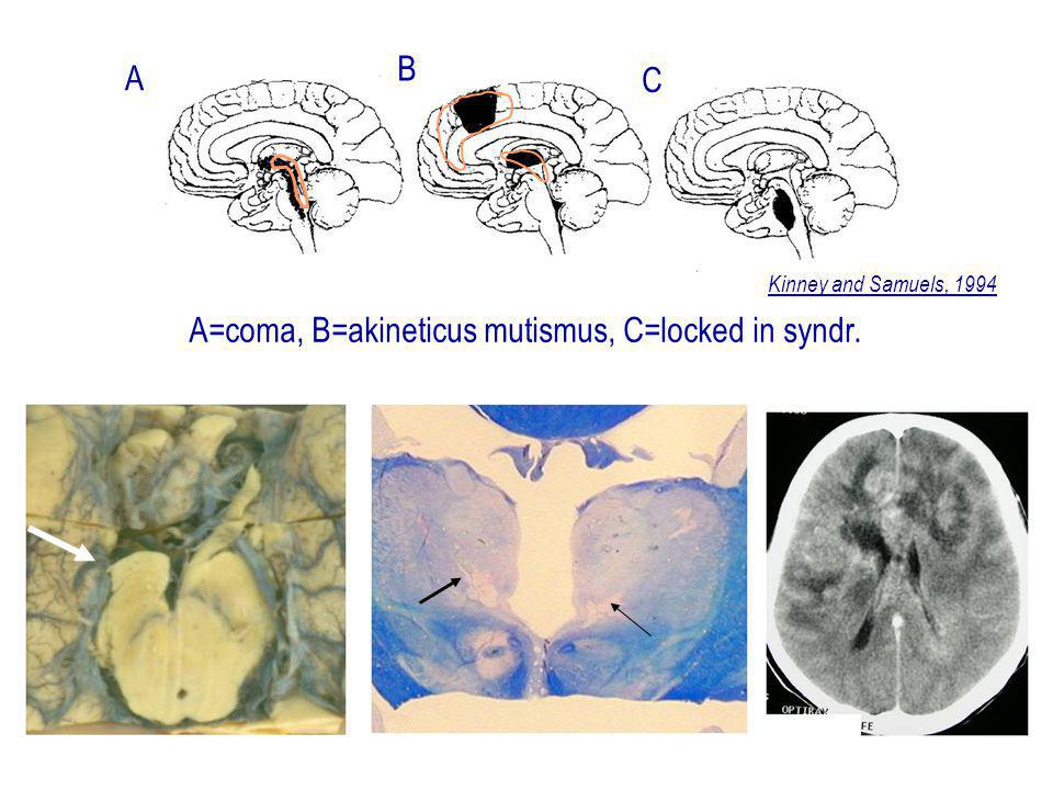 A=coma, B=akineticus mutismus, C=locked in syndr.