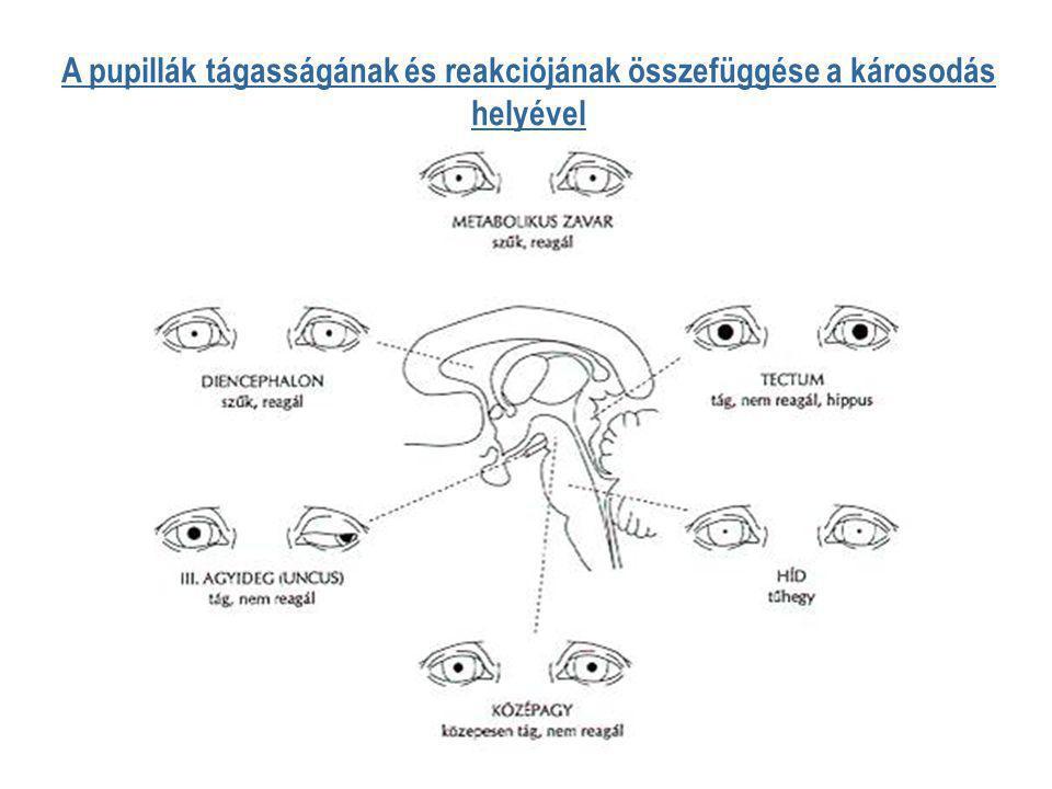 A pupillák tágasságának és reakciójának összefüggése a károsodás helyével