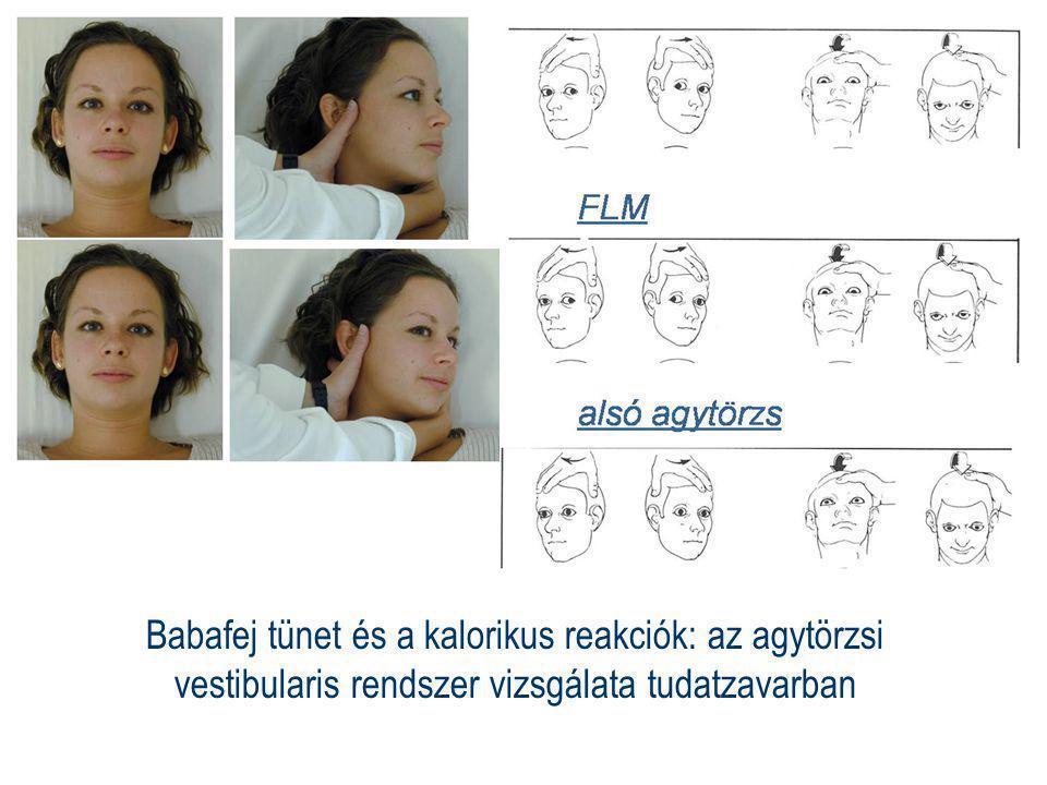 Babafej tünet és a kalorikus reakciók: az agytörzsi vestibularis rendszer vizsgálata tudatzavarban