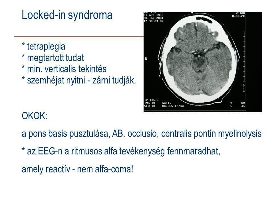 Locked-in syndroma * tetraplegia * megtartott tudat