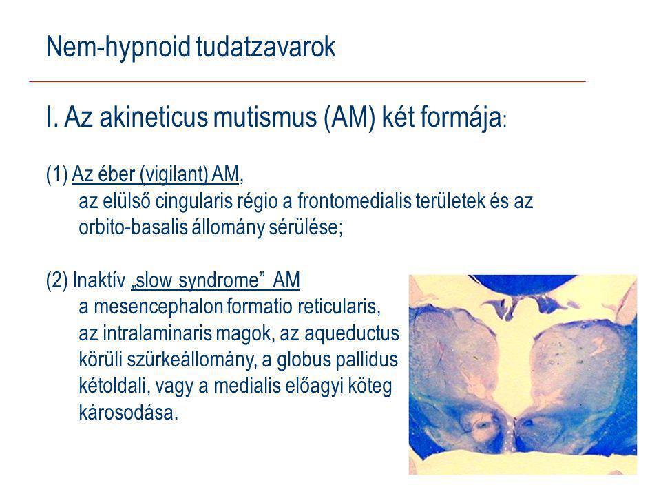 Nem-hypnoid tudatzavarok I. Az akineticus mutismus (AM) két formája: