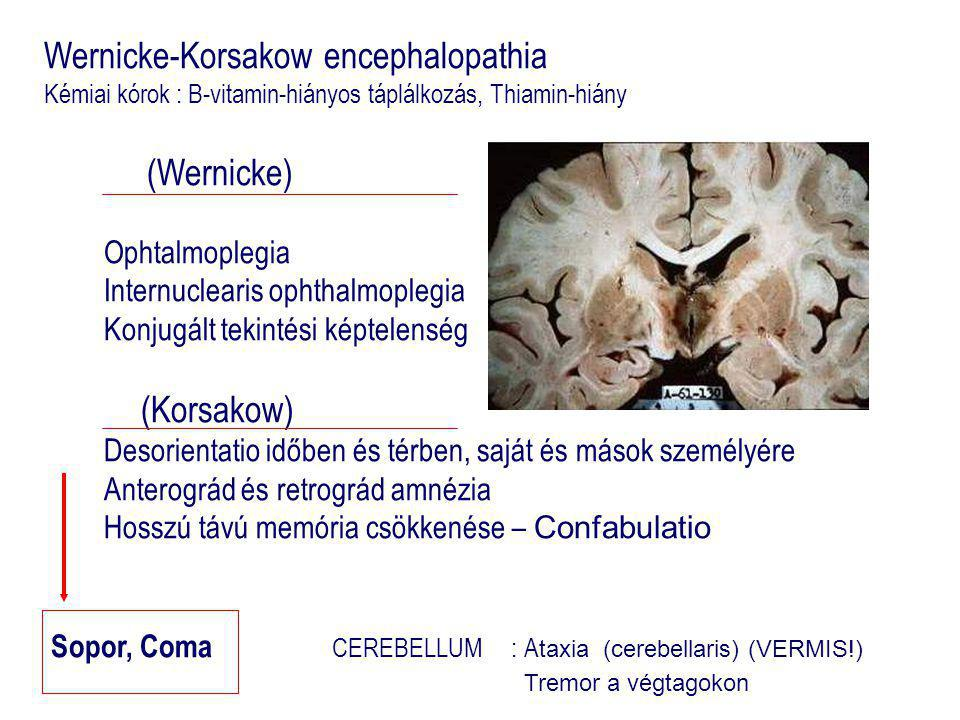 Wernicke-Korsakow encephalopathia