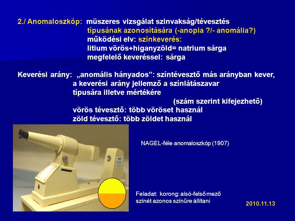 2./ Anomaloszkóp: müszeres vizsgálat szinvakság/tévesztés