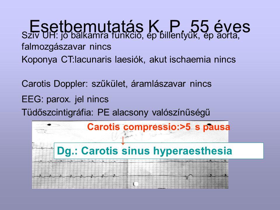 Esetbemutatás K. P. 55 éves Dg.: Carotis sinus hyperaesthesia