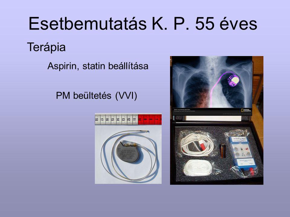 Esetbemutatás K. P. 55 éves Terápia Aspirin, statin beállítása