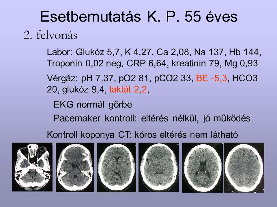 Esetbemutatás K. P. 55 éves 2. felvonás EKG normál görbe