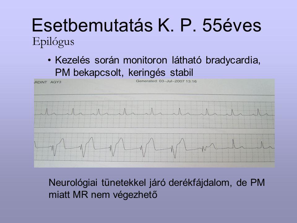 Esetbemutatás K. P. 55éves Epilógus