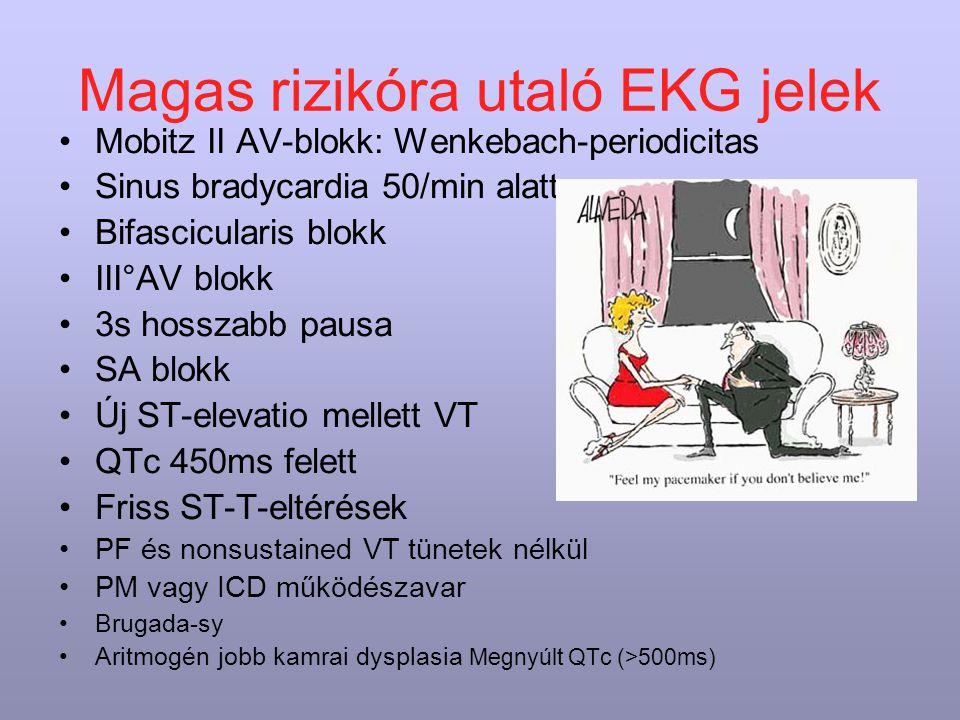 Magas rizikóra utaló EKG jelek