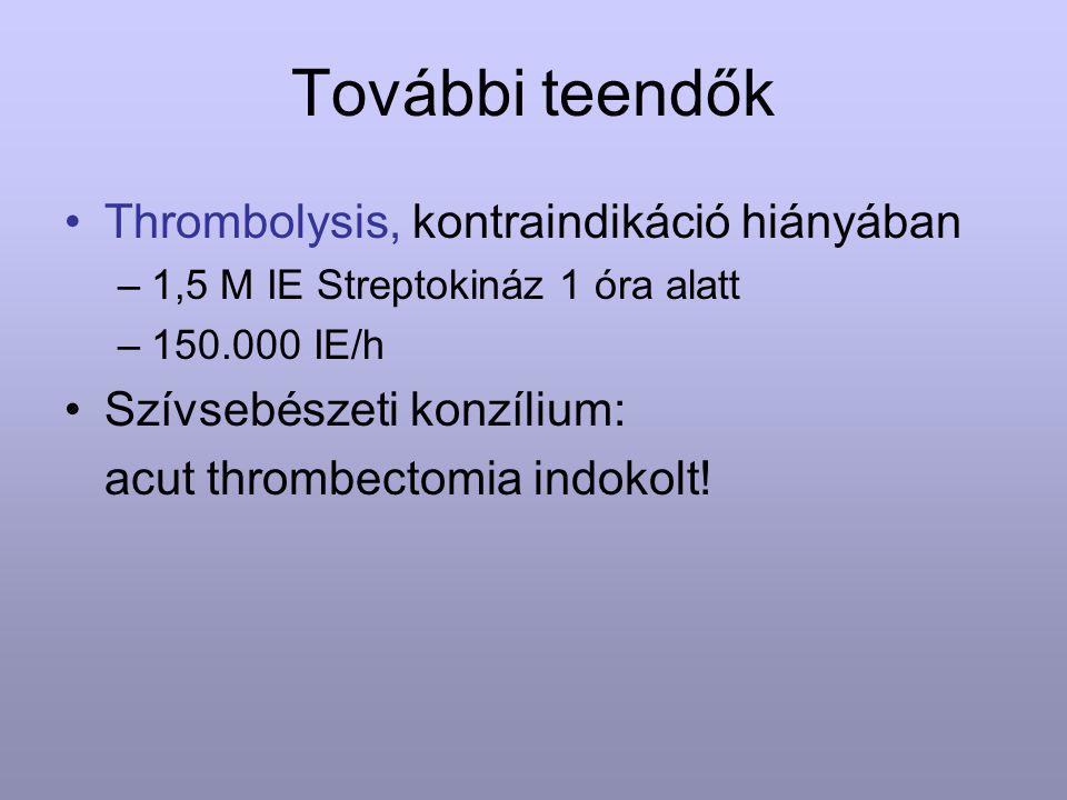 További teendők Thrombolysis, kontraindikáció hiányában