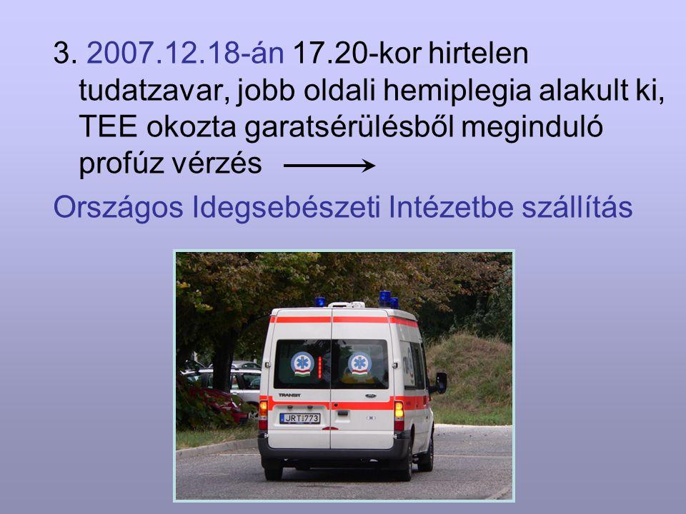 3. 2007.12.18-án 17.20-kor hirtelen tudatzavar, jobb oldali hemiplegia alakult ki, TEE okozta garatsérülésből meginduló profúz vérzés