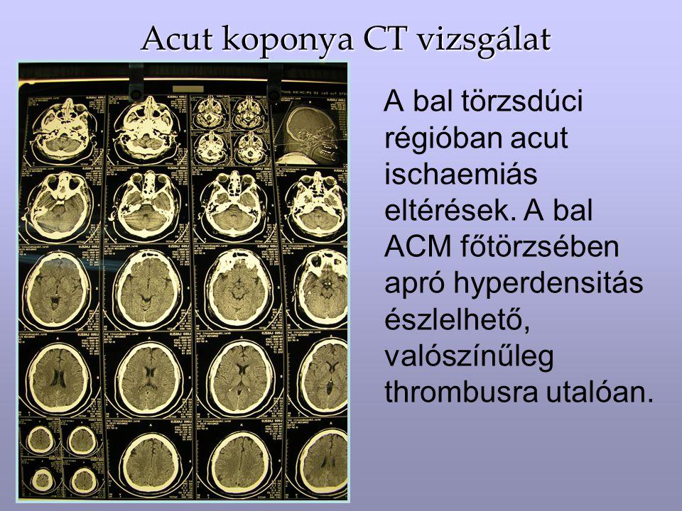 Acut koponya CT vizsgálat