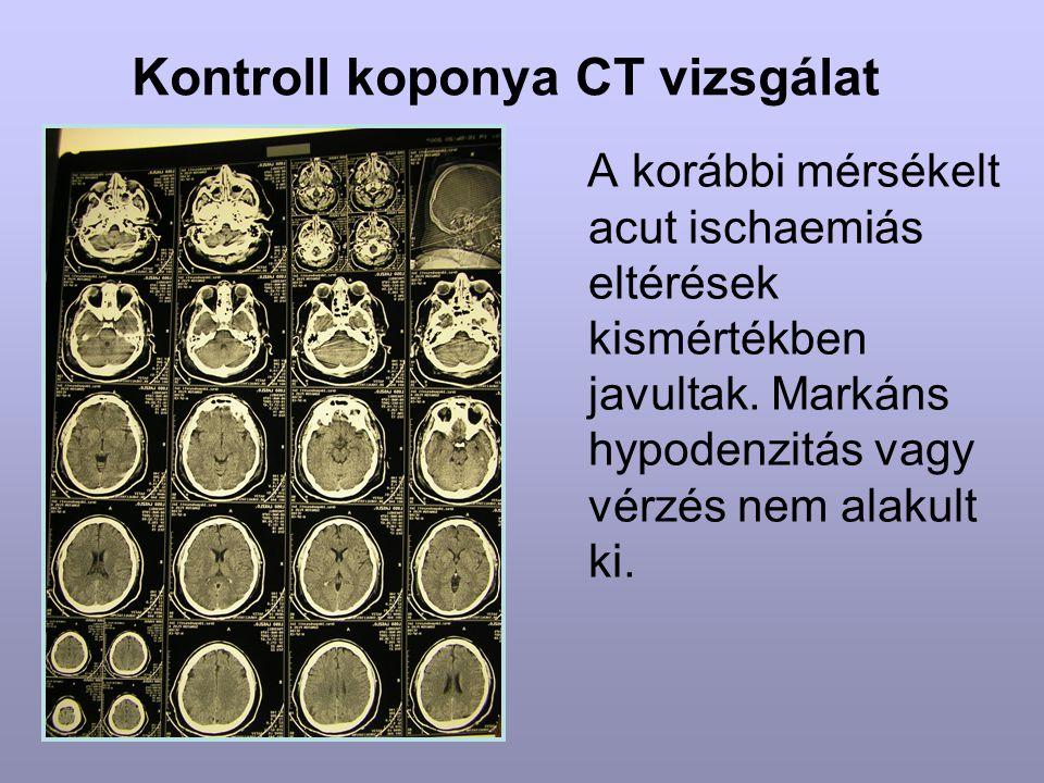 Kontroll koponya CT vizsgálat