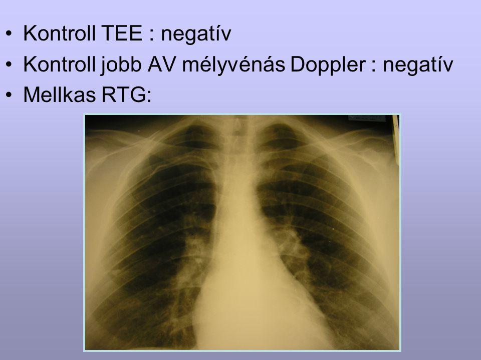 Kontroll TEE : negatív Kontroll jobb AV mélyvénás Doppler : negatív Mellkas RTG: