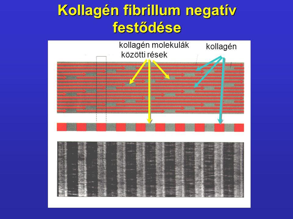Kollagén fibrillum negatív festődése