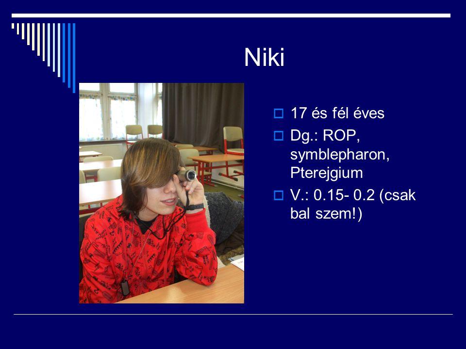 Niki 17 és fél éves Dg.: ROP, symblepharon, Pterejgium