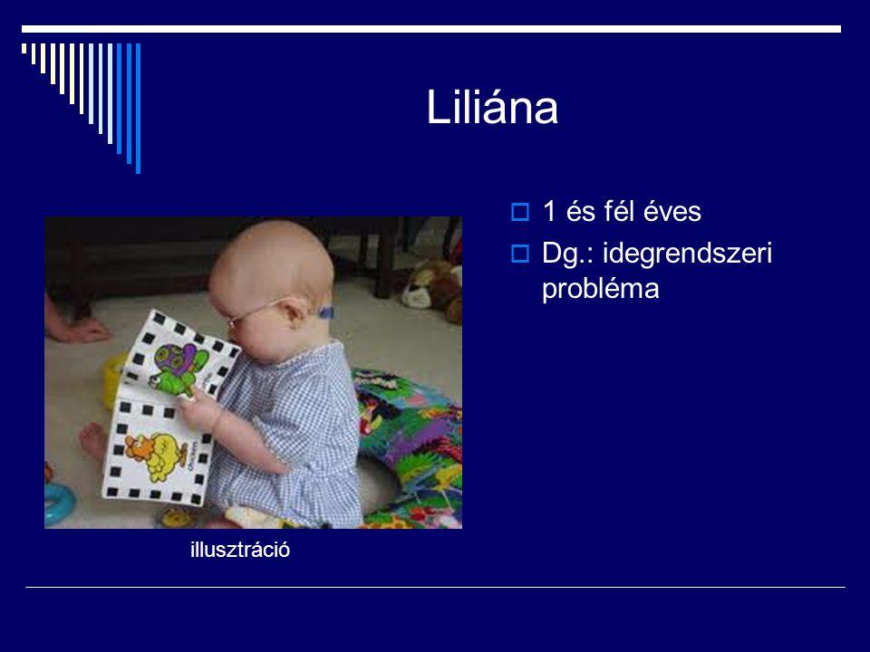 Liliána 1 és fél éves Dg.: idegrendszeri probléma illusztráció