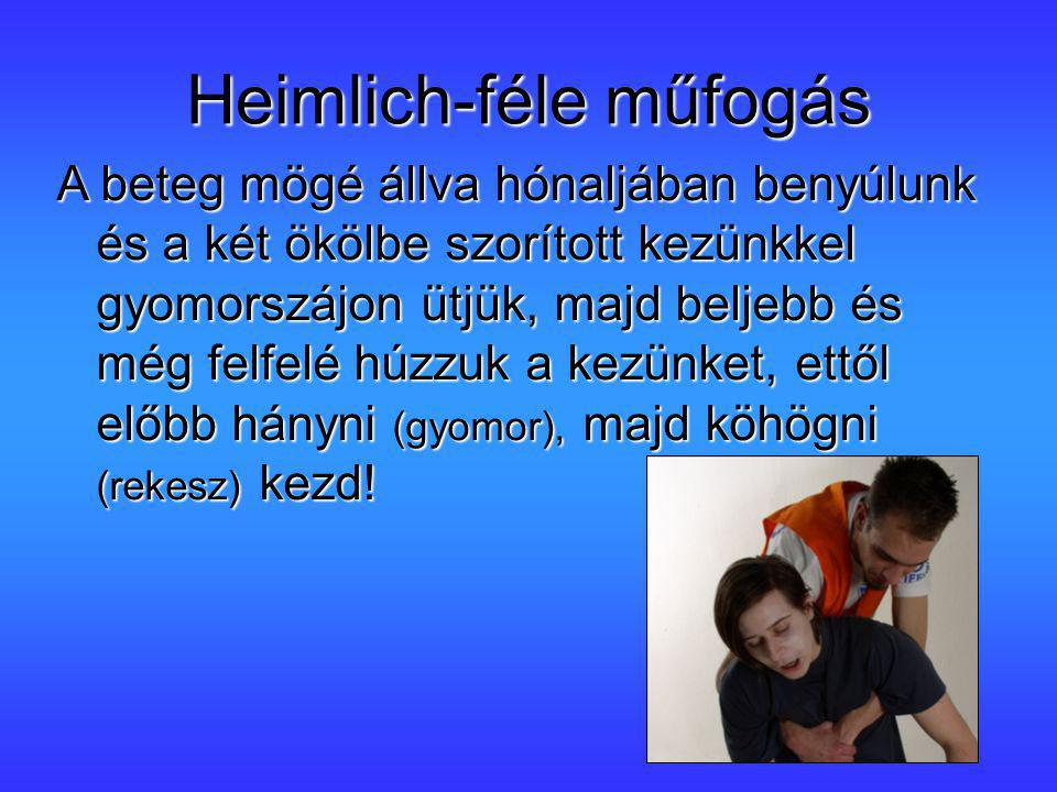 Heimlich-féle műfogás