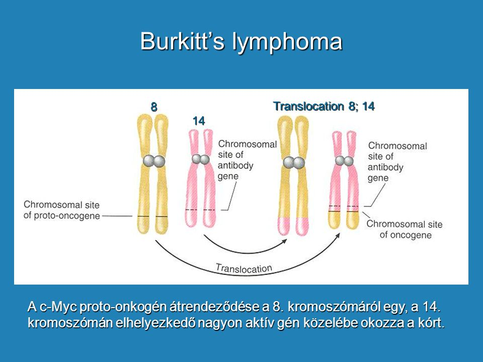 Burkitt's lymphoma 8. 14. Translocation 8; 14.