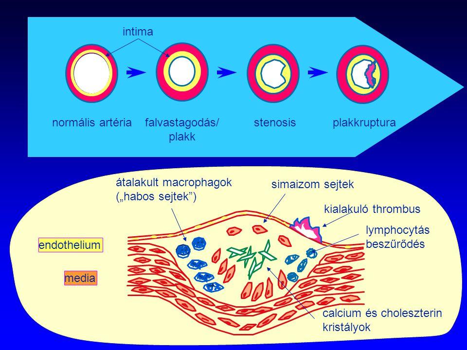 """intima normális artéria. falvastagodás/ plakk. stenosis. plakkruptura. átalakult macrophagok. (""""habos sejtek )"""